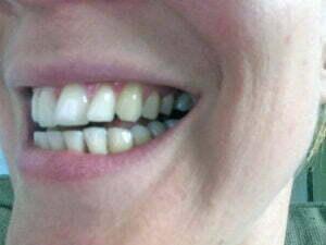 Voor_tanden